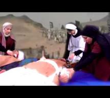 رفيدة الاسلمية اول ممرضه في عهد الاسلام
